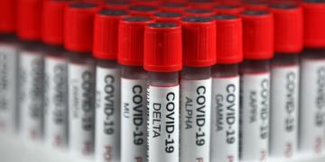 Ontário relata menos de 400 novos casos de COVID-19 e a média de 7 dias atinge o mínimo de dois meses