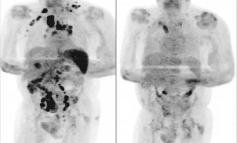 Infectado pelo novo coronavírus, idoso tem remissão generalizada de câncer em estágio avançado